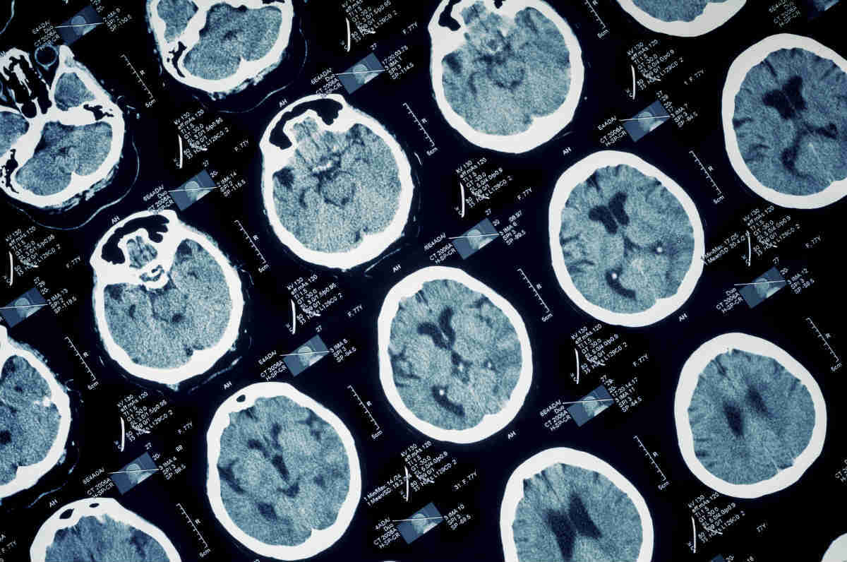 medical malpractice brain injury