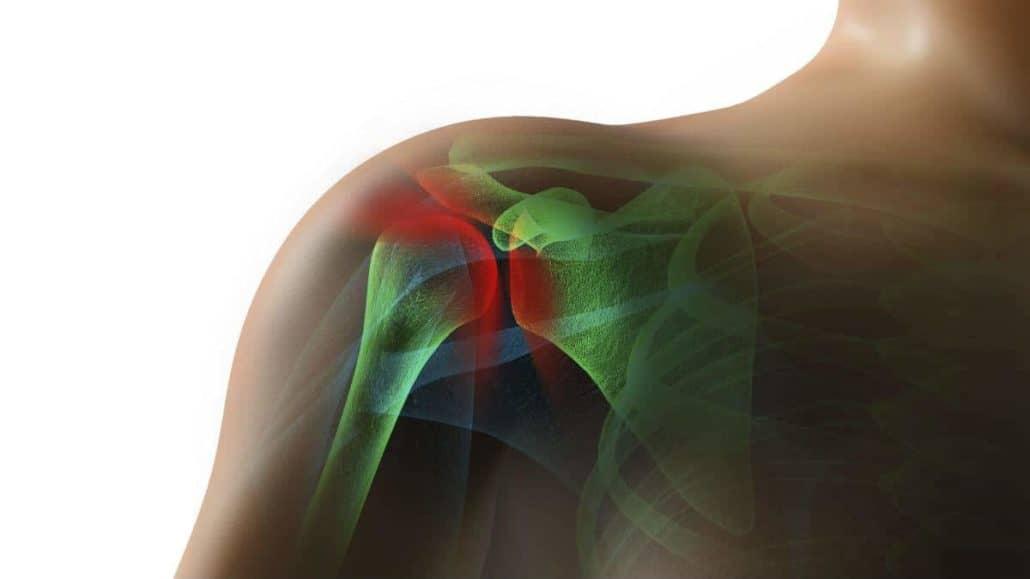 rotator cuff tear-chiacgo-personal-injury-attorneys