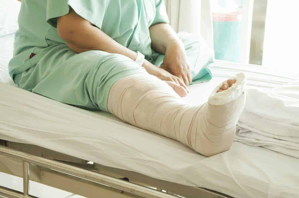 Broken Bones From Car Accidents Willens Law Offices