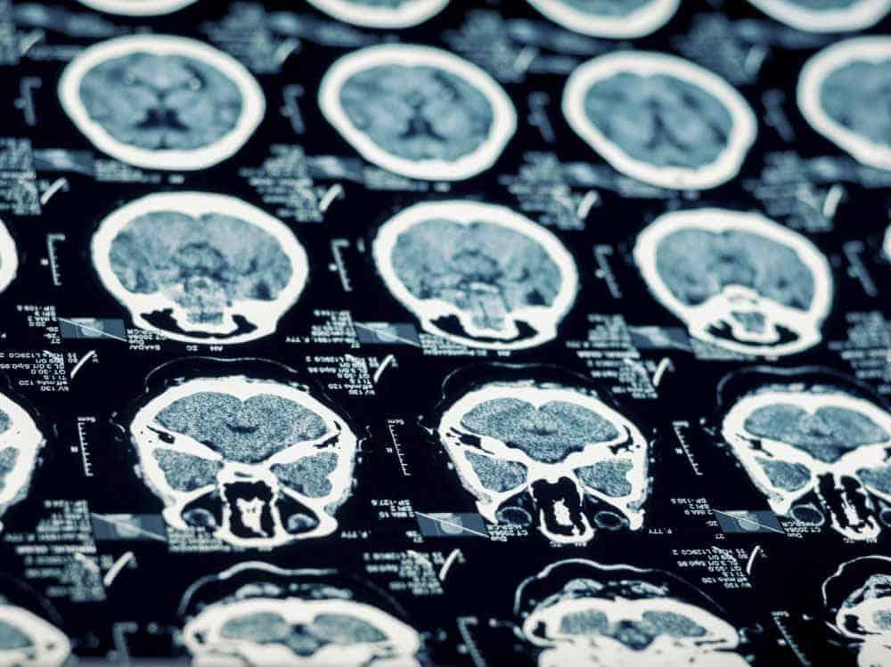 Chicago traumatic brain injury scans