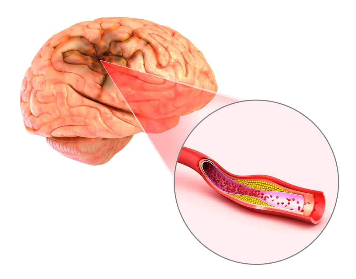 Anoxic Brain Injuries Chicago
