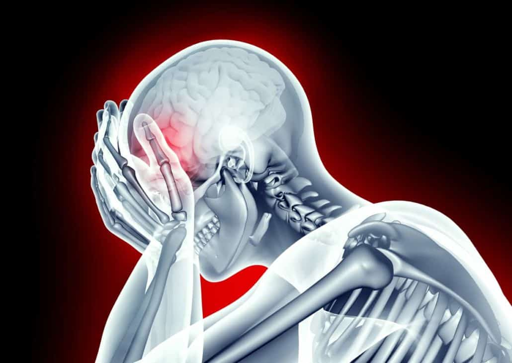 Head Injury After Car Accident