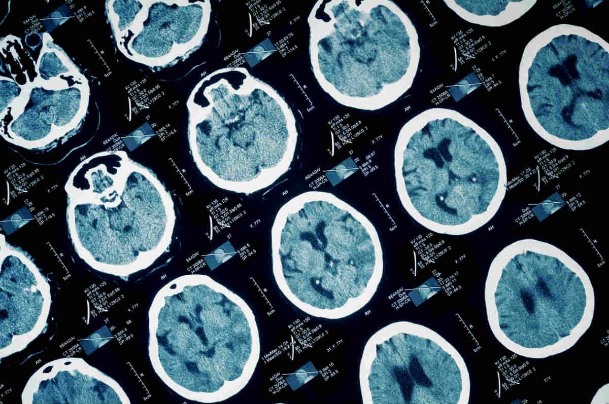 brain injury scan Chicago