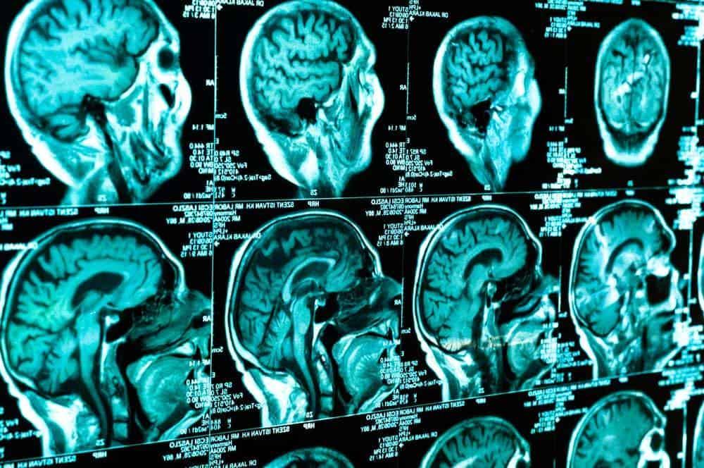 Chicago Head Injury Lawyer - Head Injury Types & Symptoms