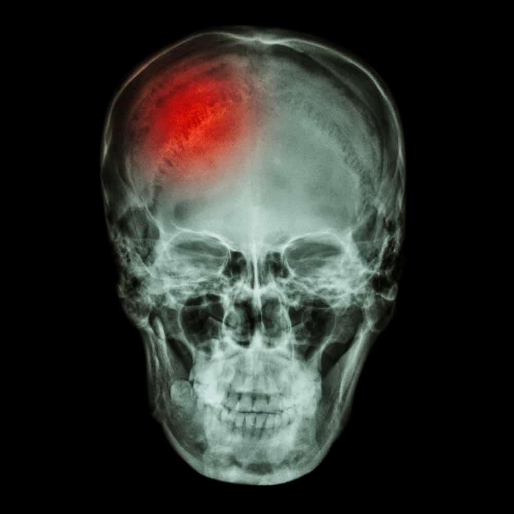 Traumatic Brain Injury And PTSD Often Go Hand In Hand 1